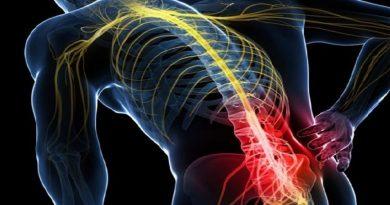 fisioterapia sciatica roma
